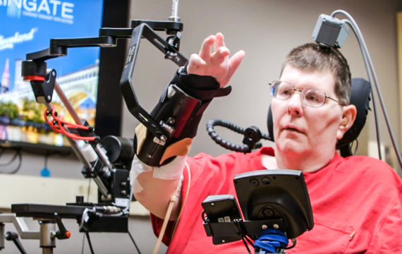Man with quadriplegia can move hand and arm again by thinking about it