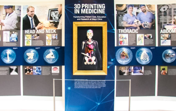 Mayo Clinic keeps breaking 3D-printing barriers - ICT&health