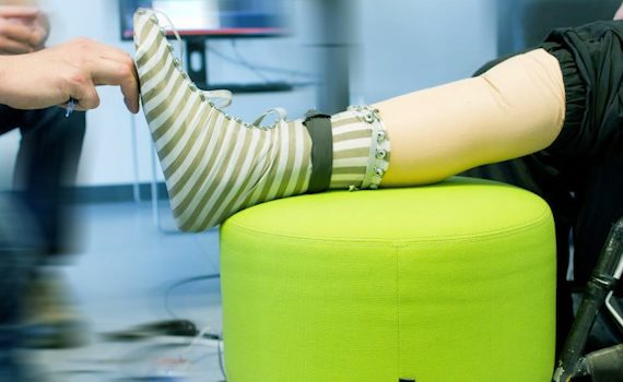 Smart sock adds sensations to prosthetics
