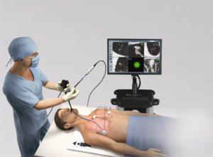 Impressie: Het Radboudumc zet 3D-navigatie in om longkanker vroegtijdig op te sporen en invasie biopsies te beperken. (Beeld Radboudumc).