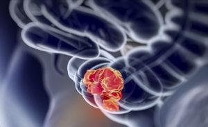 Het platform 'Samen tegen darmkanker' wil gegevens van alle mensen met darmkanker in Nederland verzamelen zodat er naar een behandeling op maat toegewerkt kan worden.