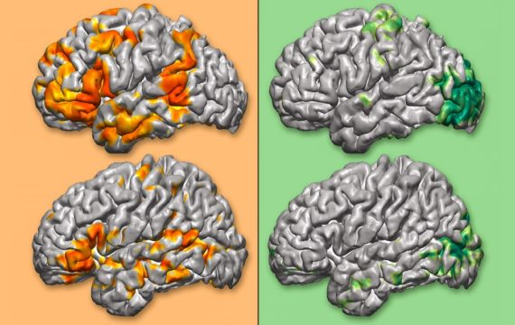 New software builds personalized 3D maps of brain functions