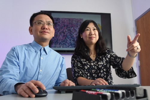 Computer model can predict most deadly lung cancers