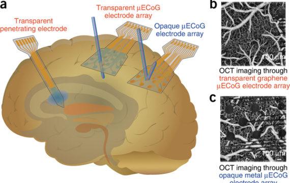Revolutionary transparent graphene neural sensors