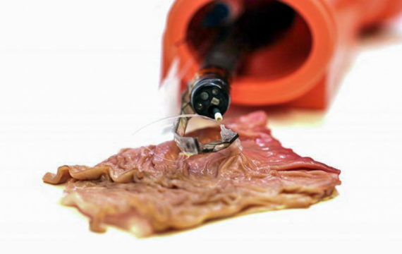 Hybrid flexible-rigid robotic arm can go where flexible endoscopes can't
