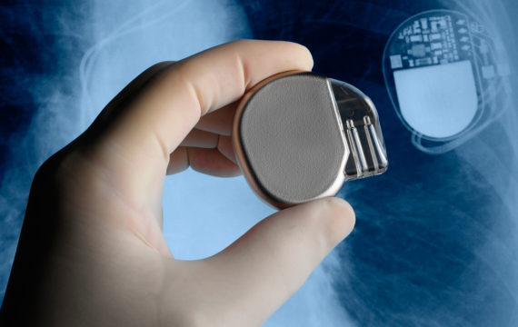 Hackable implanted medical devices can kill patients