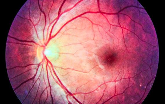 AI based algorithm can predict likelihood of diabetic retinopathy