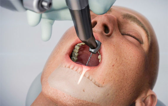 First FDA clearance for robotic guidance system for dental implant procedures