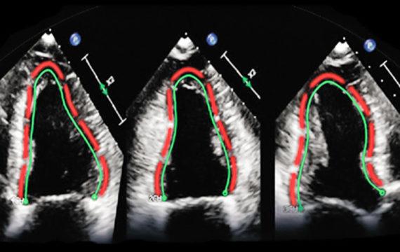 Philips buys German TomTec to broaden diagnostic ultrasound portfolio