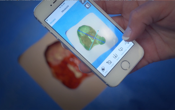 PointClickCare Launches Skin and Wound Smartphone App