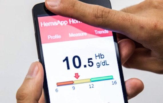 Google buys healthcare startup Senosis Health