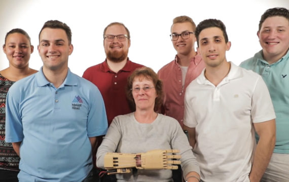 3D technology, new algorithms aid in use of prosthetic limbs