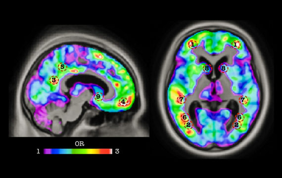 New algorithm can detect early signs of dementia years ahead of symptoms