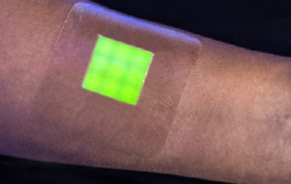 New type of dressing turns green when wound becomes infected