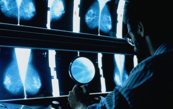 IBM Watson Health put to the test in hospitals, imaging tech companies