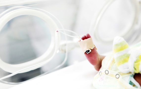 Brain activity of premature new-born baby recorded