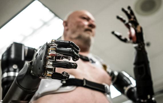 Resembling control of prosthetic limb movement