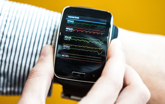 Wearable devices can give insights into brain activity